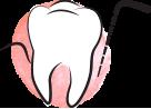 Leczenie parodontozy