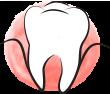 Co to jest parodontoza?