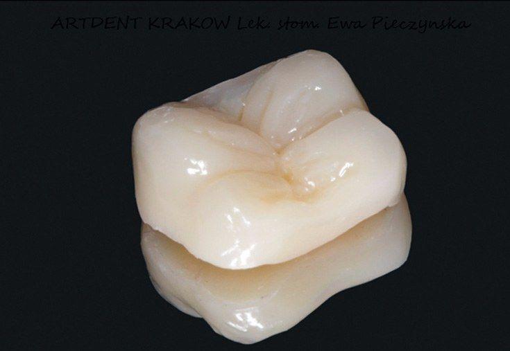 dentysta kraków inlay onlay